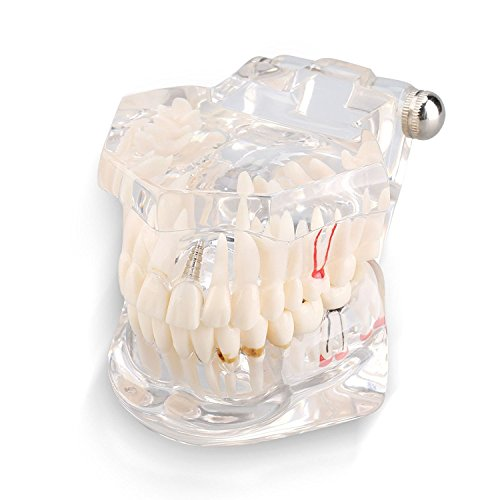 Removable Adult Teeth Study Dental Pathological Disease Implant Teaching Typodont Model - Dentist Standard