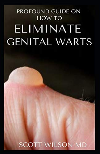 PROFOUND GUIDE TO ELIMINATE GENITAL WARTS: The Ultimate Guide To Eliminate Genital Warts