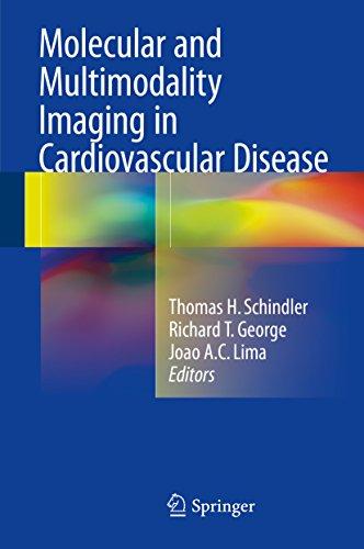 Molecular and Multimodality Imaging in Cardiovascular Disease (English Edition)