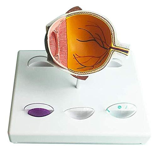 Modelo de estudio Modelo de ojos de glaucoma - Modelo de ojo anatómico de órgano humano - Modelo de glaucoma anatómico médico Anatomía patológica médica - Para ayuda médica de capacitación educativa