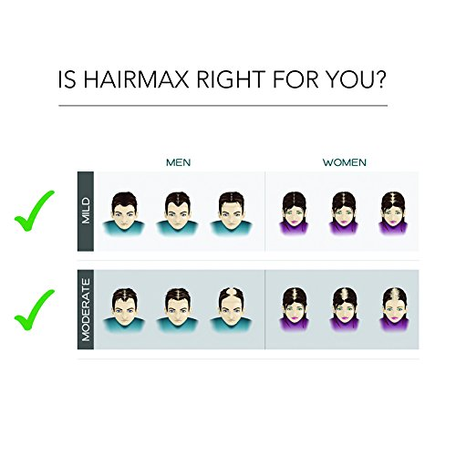 Review - Hairmax Prima 9 LaserComb