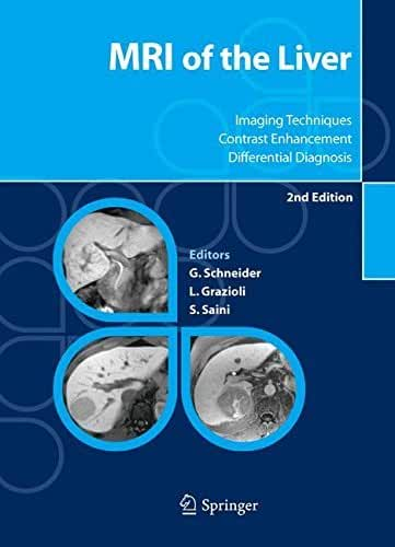 MRI of the Liver: Imaging Techniques, Contrast Enhancement, Differential Diagnosis (English Edition)