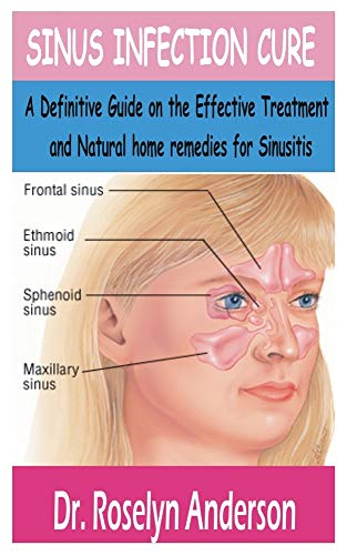 SINUS INFECTION CURE: A Definitive Guide on the effective treatment and natural home remedies for sinusitis