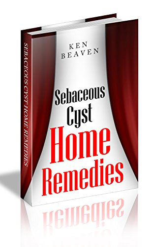 Sebaceous Cysts Home Remedies