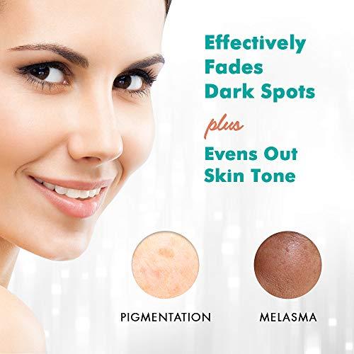 Ebanel Dark Spot Remover for Face 2% Hydroquinone Cream Skin Lightening Dark Spot Corrector for Melasma and Hyperpigmentation Treatment with Azelaic Acid, Kojic Acid, Alpha Arbutin