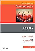 Pruritus, An Issue of Dermatologic Clinics (Volume 36-3) (The Clinics: Dermatology, Volume 36-3)
