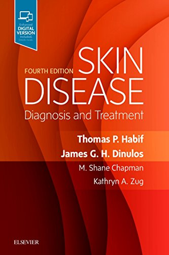 Skin Disease: Diagnosis and Treatment