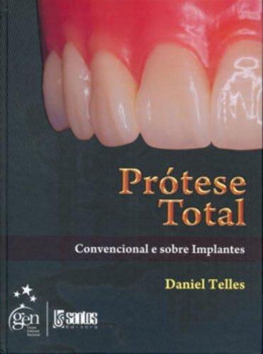Prótese Total - Convencional e Sobre Implantes