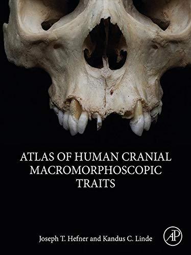 Atlas of Human Cranial Macromorphoscopic Traits (English Edition)