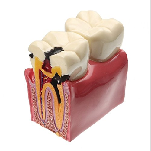 Dental Caries Tooth Model, YOUYA DENTAL Decay Teeth Comparative Study Model 6 Times Caries Tooth Teaching Tools