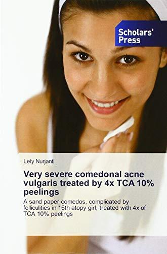 Very severe comedonal acne vulgaris treated by 4x TCA 10% peelings: A...