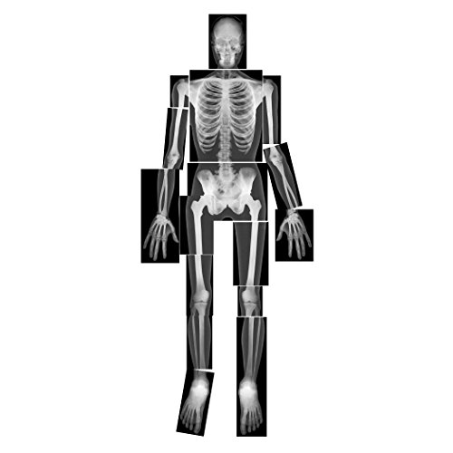 Roylco True to Life Human X-Rays