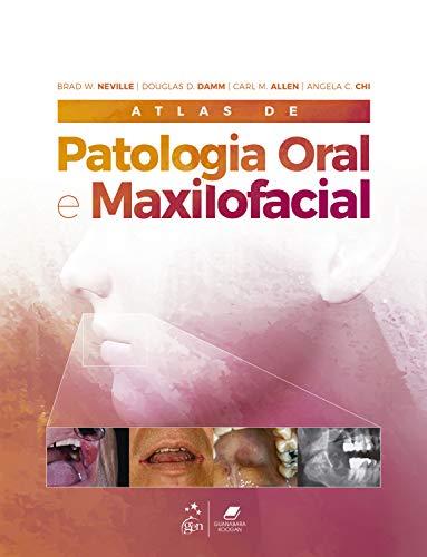 Atlas de Patologia Oral e Maxilofacial