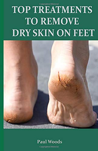 TOP TREATMENTS TO REMOVE DRY SKIN ON FEET