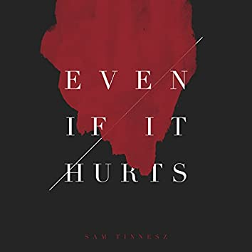 Even If It Hurts (Acoustic)