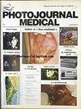 PHOTO JOURNAL MEDICAL (LE) [No 1] du 01/01/1981 - NOTRE NOBEL - LE SCANNER GENOU - LA THROMBECTOMIE.