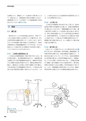 『AO法骨折治療[英語版Web付録付] 第3版』の9枚目の画像