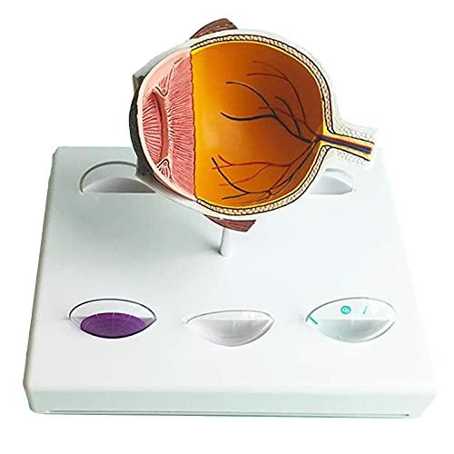 FGVBC Modelo anatómico del Ojo Humano - Modelo del Ojo del Glaucoma - Réplica de la anatomía del Cuerpo Humano para la Herramienta educativa de la Oficina del médico