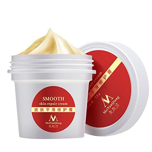 Stretch Marks Cream Corps hydratant Crème soin de la peau anti-vergetures pour Peau lisse et soyeuse. Prévention, réduction des vergetures. Idéal pour enlever les vergetures, les marques minceur et les cicatrices pour les femmes et les hommes