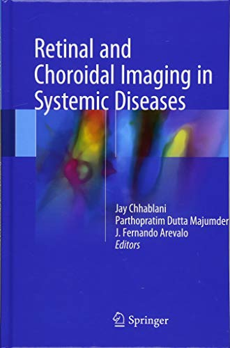 Download Retinal and Choroidal Imaging in Systemic Diseases 9811054592