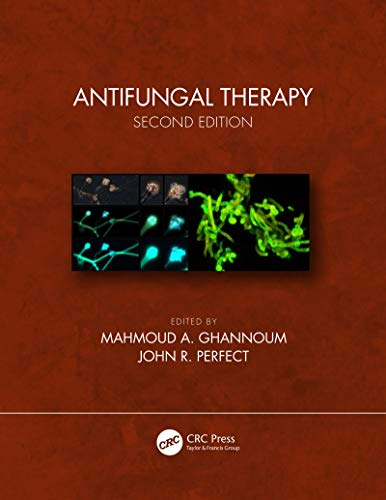 Antifungal Therapy, Second Edition (English Edition)