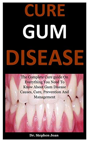 Cure Gum Disease: The Complete Cure guide On Everything You Need To Know About Gum Disease Causes, Cure, Prevention And Management