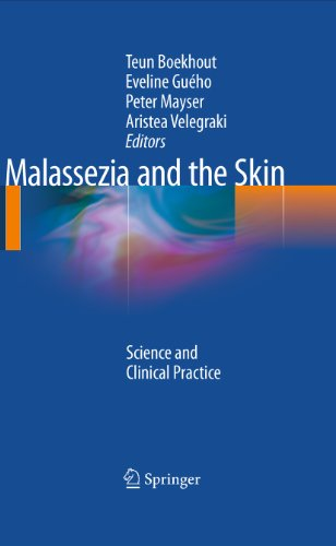 Malassezia and the Skin: Science and Clinical Practice (English Edition)