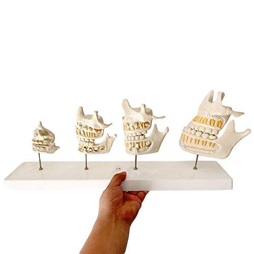 Albb - Modelo de dientes para la comparación del crecimiento de los dientes, modelo de cuidado de la boca parodontal para dentistas estudian la investigación y la educación de los pacientes.