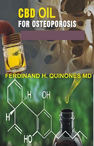 CBD OIL FOR OESTOPOROSIS: All You Need To Know About Using Cbd Oil for Treating Oestoprosis (English Edition)
