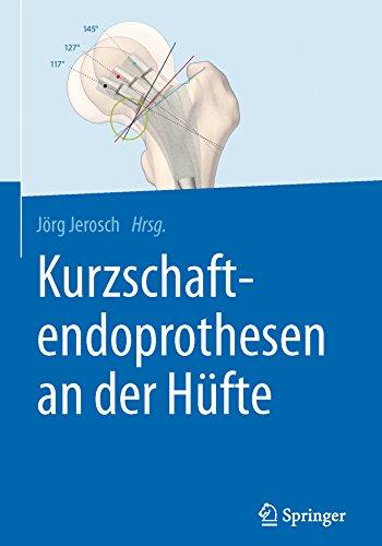 Kurzschaftendoprothesen an der Hüfte (German Edition)