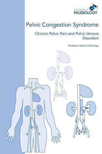 Pelvic Congestion Syndrome - Chronic Pelvic Pain and Pelvic Venous Disorders