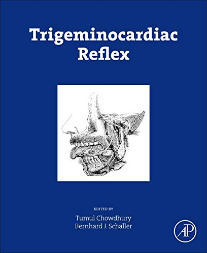 Trigeminocardiac Reflex