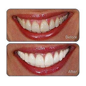 Go Smile Premium 2-in-1 Teeth Whitening System: Electric Tooth Brush+Teeth Whitening Gel for Healthier & Brighter Teeth | Instant Results, Safe On Dental Work, Crowns, Veneers, Bonding+More (Silver)