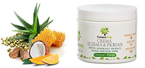 Natura Only-Crema de eccema y psoriasis de mango y coco-crem