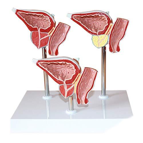 kruidvat nier prostaat en blaas