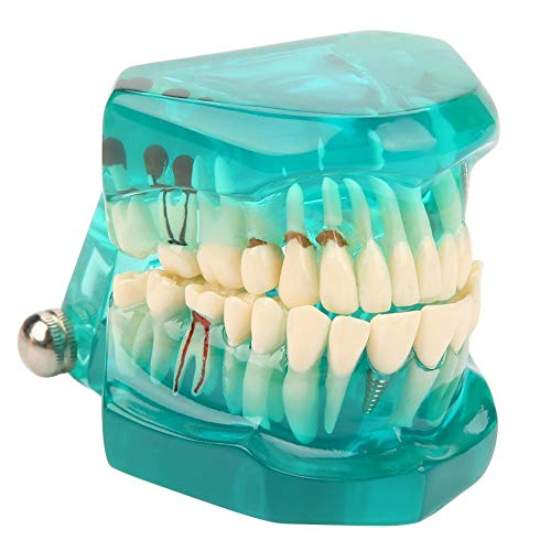 Akozon Transparent Teeth Model Zahnimplantat-Ausbildungsmodell Erwachsenen Pathologien Dental Implant Zahnarzt Parodontalerkrankungen Demonstration Zähne Zahnfleisch Zahnpflege Abnehmbarer (Blau)