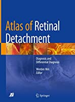 Atlas of Retinal Detachment: Diagnosis and Differential Diagnosis