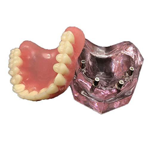 Vinbcorw Modello Dentale -Maxilla Mini 4 Viti implantare - Riparazione di Protesi mobili La Comunicazione Medica-paziente Rimovibile,Rosa