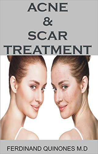ACNE & SCAR TREATMENT: All You Need To About Curing Acne with Ease, Quickly And Naturally.