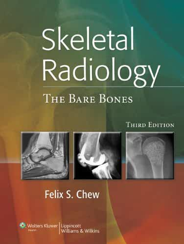 Skeletal Radiology: The Bare Bones (English Edition)