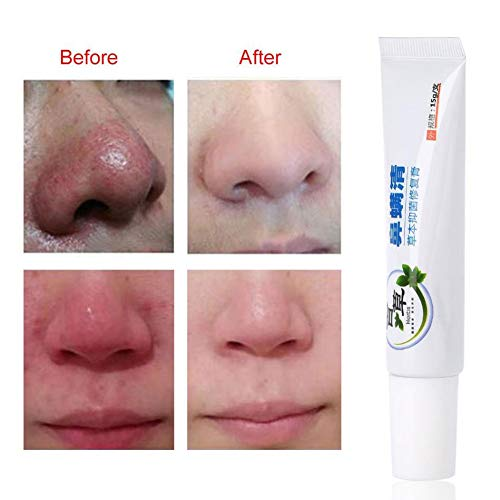 Rosacea Creme - Rosacea Treatment Skin Care Poren Produkte für Gesicht Rötung Relief, Entzündungen und Anti-Akne, feuchtigkeitsspendende, unterdrücken Bakterien und Juckreiz Creme