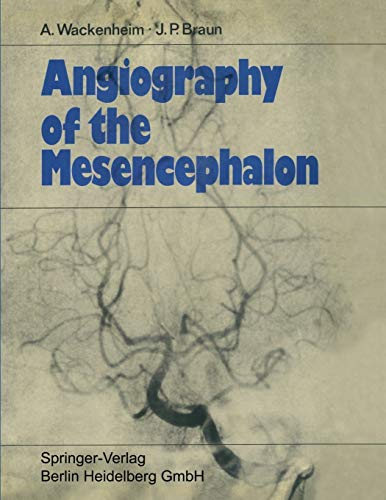 Angiography of the Mesencephalon: Normal and Pathological Findings