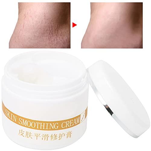 jadenzhou Crema para Marcas de Quemaduras, Crema reparadora para Suavizar Cicatrices para Diferentes Tipos de Piel para la Piel reparadora de Cicatrices decoloradas
