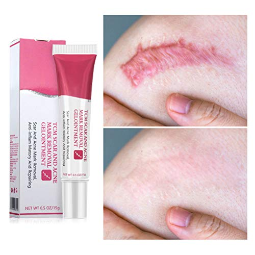 Scald Aknepunkte Scar Stretch Mark Cream Whitening Cream Gesichtscreme Skin Care Repair Creme