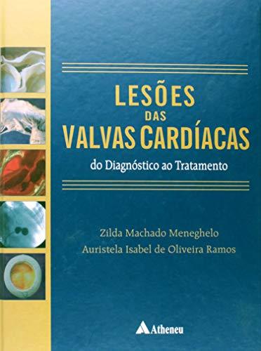 Lesões das Válvulas Cardíacas - Do Diagnóstico ao Tratamento (Portuguese Edition)