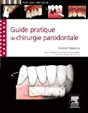 Guide pratique de chirurgie parodontale