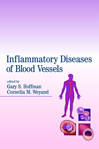 Inflammatory Diseases of Blood Vessels (English Edition)