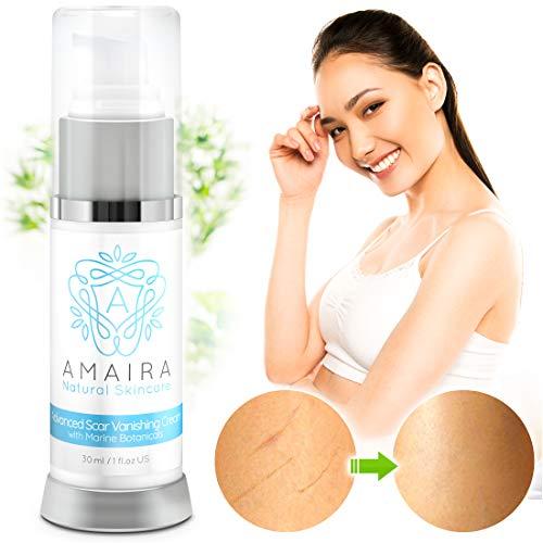 Amaira Advanced Scar Cream – Scientifically Proven Stretch Mark, Surgery, Burn & Acne Scar Remover Treatment – Premium Blemish Fade Removal for Men & Women