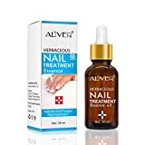 Nail Treatment Essence Oil, Natural Nail Treatment, Effective Nail Repair cream, Use for Toenails and Fingernails Solution