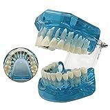 Modelo De Enseñanza De Estudio De Dientes Dentales - Modelo De Ortodoncia - Modelo De Demostración De Dientes - Modelo De Soporte Lingual Intraoral Dental - - Modelo De Tratamiento De Corrección Sigi